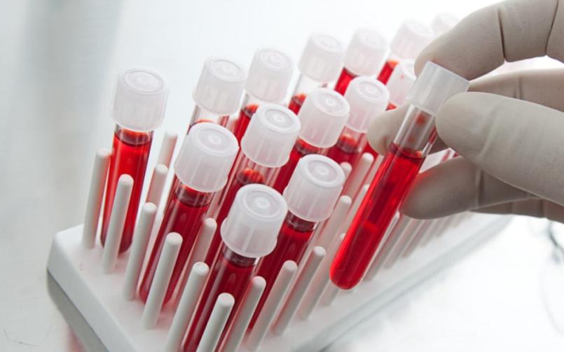 Биохимический анализ крови — расшифровка показателей