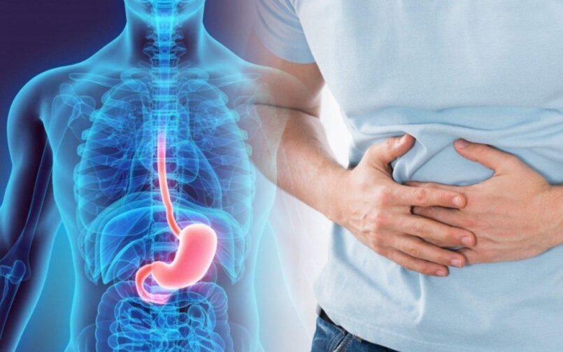 Язва желудка и двенадцатиперстной кишки: симптомы, причины, лечение